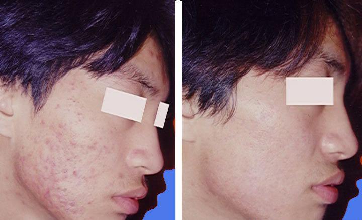 颈部长痘痘的位置图解